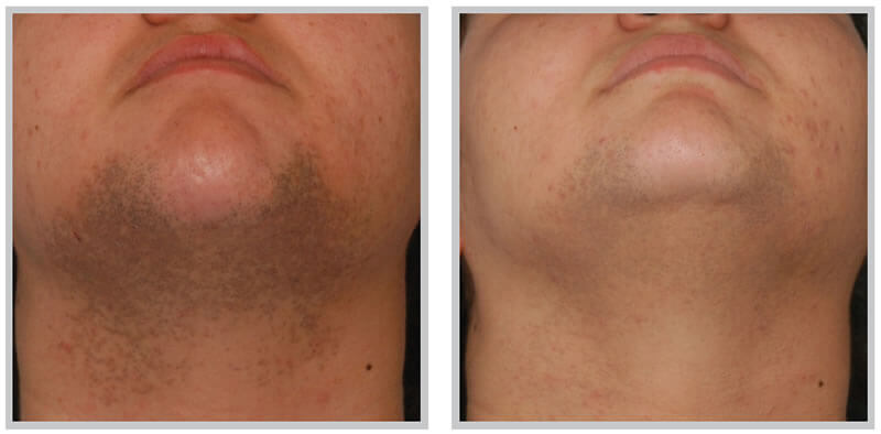 Electrolysis 100% Permanent hair removal